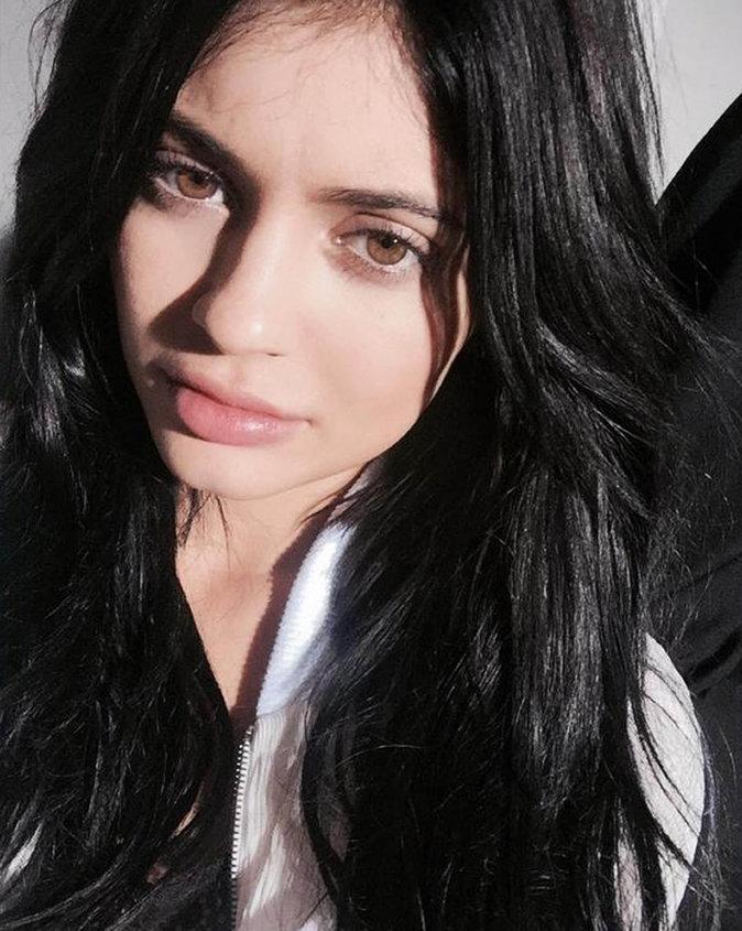 Kylie Jenner n'a jamais eu d'acné