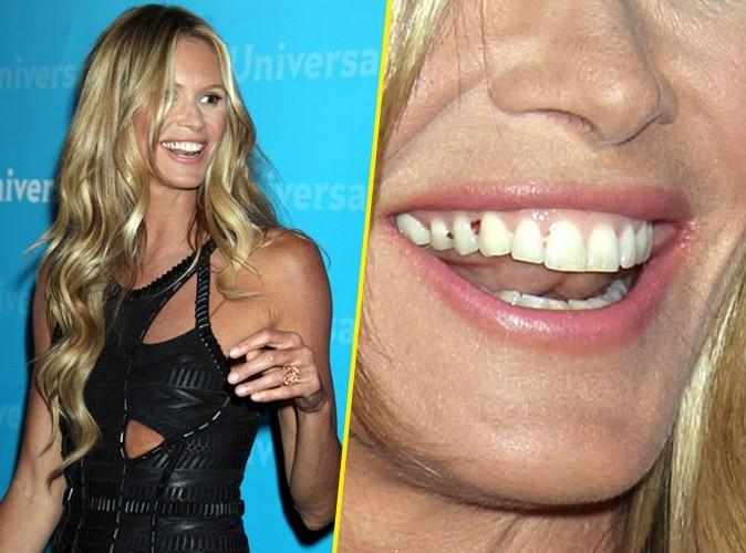 Beauté (ou pas) : Ces stars qui ont les dents sales !