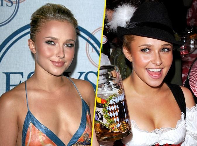 Hayden Panettiere : avant/après une chirurgie des seins