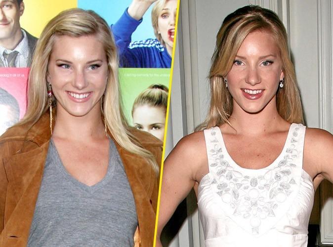 Heather Morris : avant/après une chirurgie des seins
