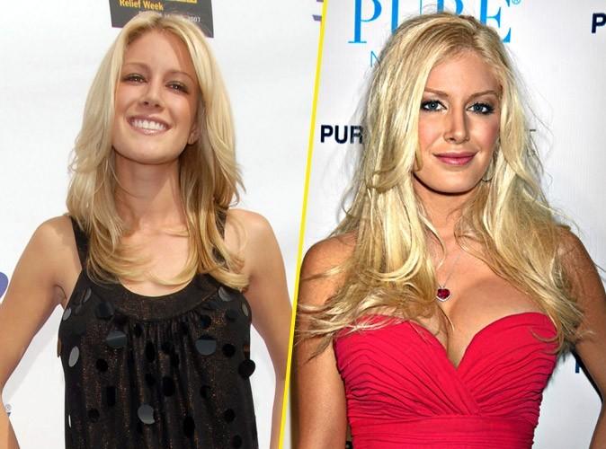 Heidi Montag : avant/après une chirurgie des seins