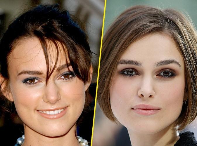 Keira Knightley : avant/après une chirurgie des lèvres