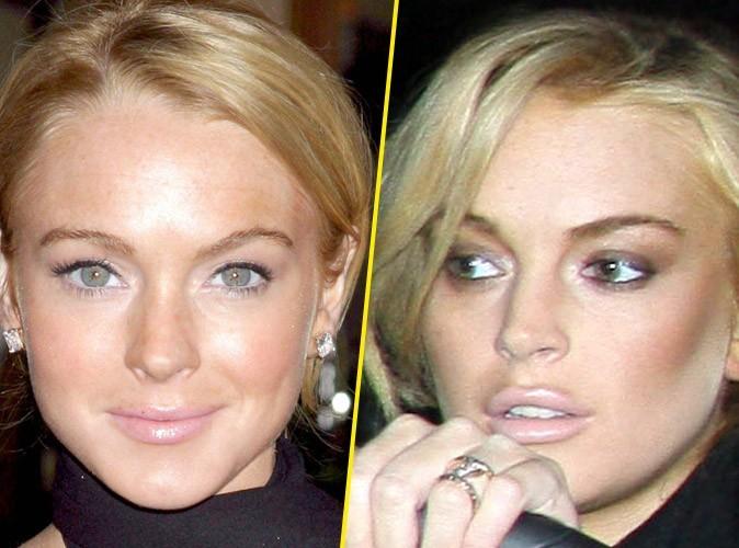 Lindsay Lohan : avant/après une chirurgie des lèvres