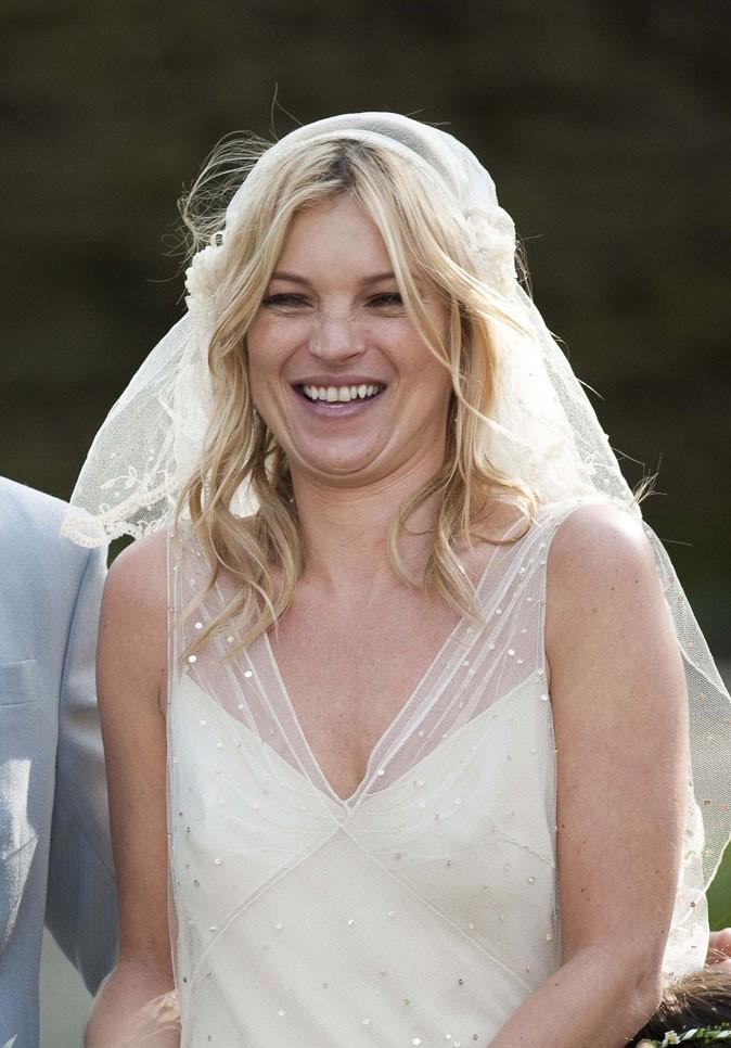 Dents de stars : le sourire de Kate Moss aujourd'hui !