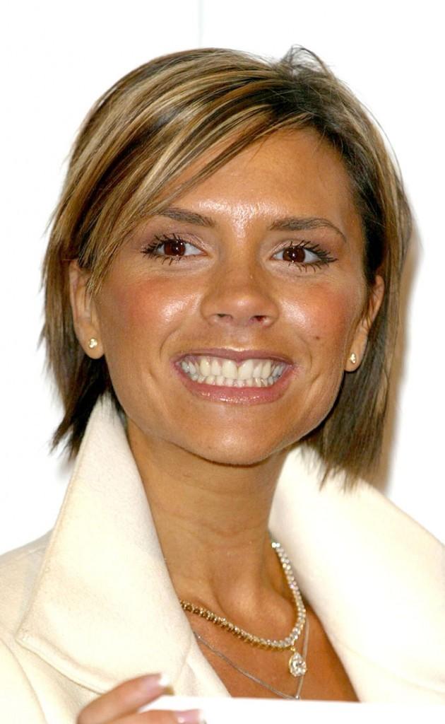 Dents de stars : le sourire de Victoria Beckham aujourd'hui !