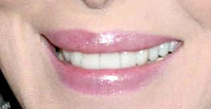 Des dents bien alignées pour la chanteuse des 80's !