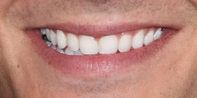 Des toutes petites dents pour Troy Bolton !