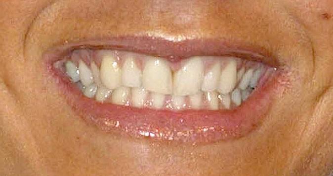 Il est rare que la Spice Girl dévoile autant ses dents !