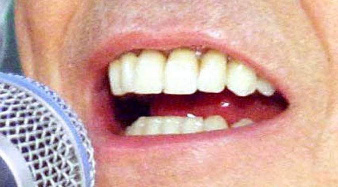 Une dentition parfaite pour le chanteur déjanté !