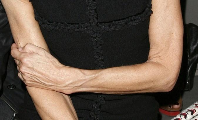 A qui sont ces bras veineux ?
