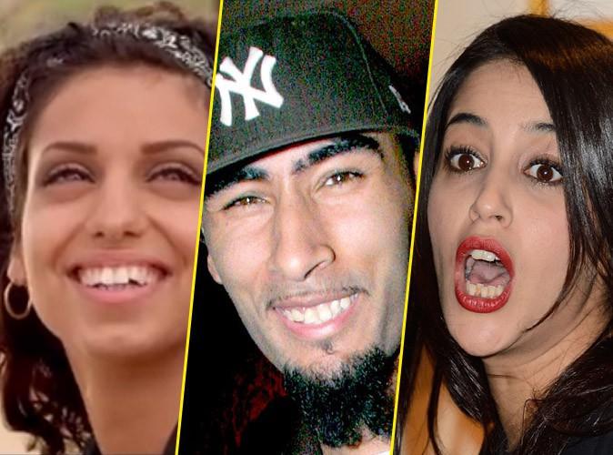 Les stars qui n'ont pas une dentition parfaite (et alors ?) !