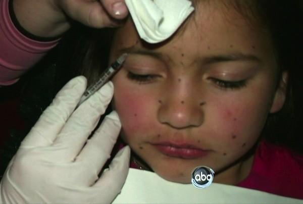 Une fillette de 8 ans se fait botoxer
