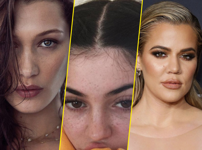 Bella Hadid, Kylie Jenner, Khloé Kardashian... Comment mettre en valeur vos tâches de rousseur ?