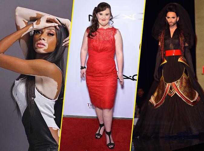 Photos : malades, trisomiques, transgenres, handicapés… Quand la mode accepte la différence !