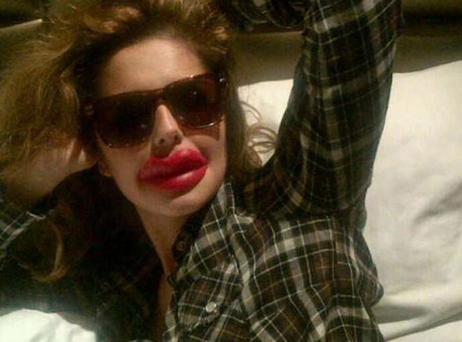 Cheryl Cole : elle a fait refaire ses lèvres !