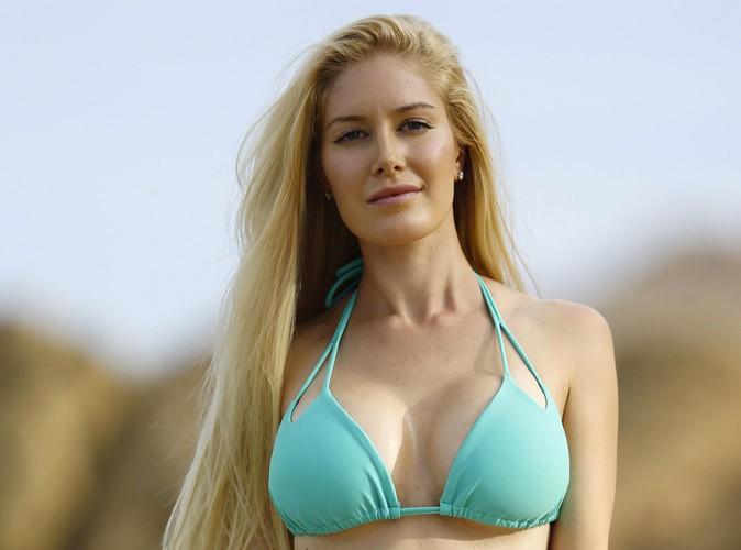Heidi Montag : 13 opérations de chirurgie esthétique, du bonnet F au C et que des regrets !