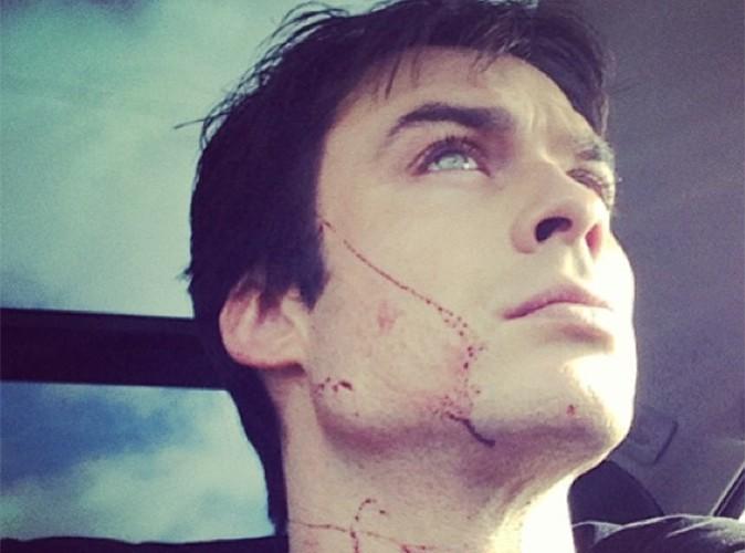 Ian Somerhalder : balafré, mais que lui est-il arrivé ?
