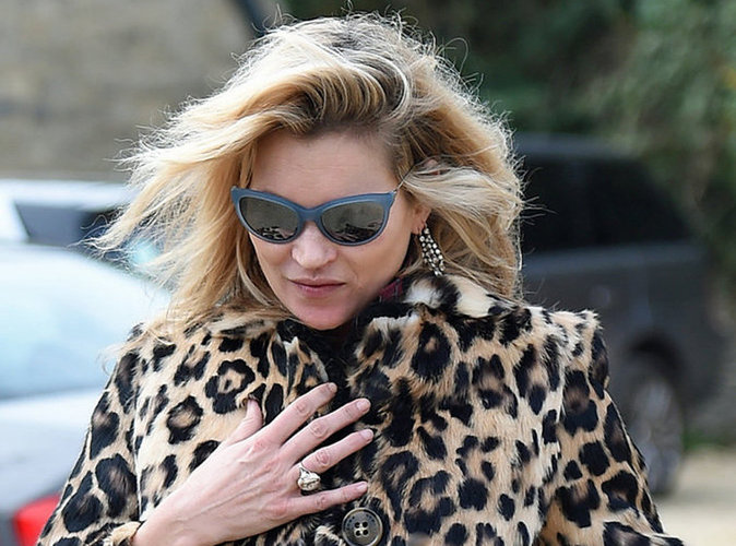 Kate Moss gravement blessée !