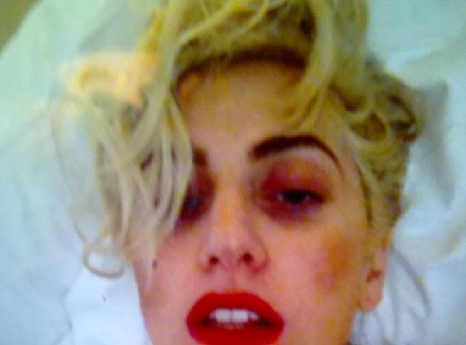 Lady Gaga : sa photo après son accident !