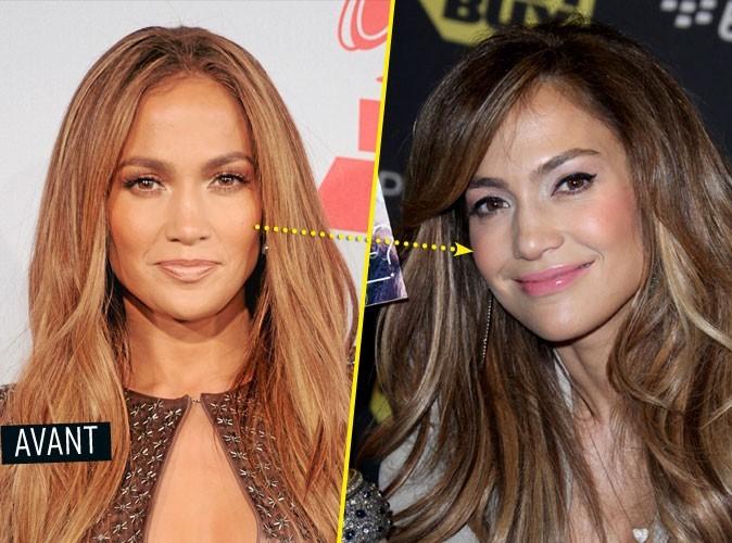 Chirurgie esthétique : Jennifer Lopez s'est fait refaire les pommettes