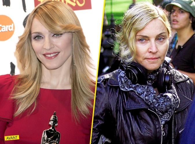 Madonnaachangé en 5 ans ! En mal !