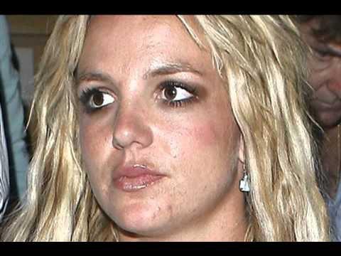 Britney Spears a une peau à problèmes !