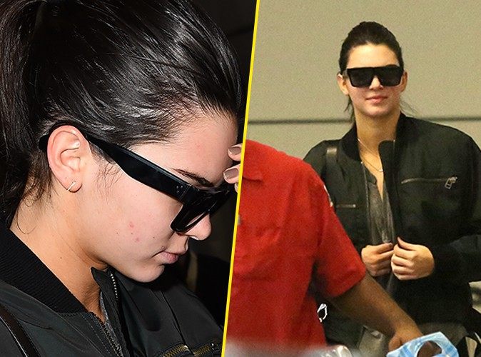 Photos : Kendall Jenner : vilaines imperfections en vue !