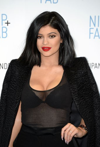 Photos : Kylie Jenner : chirurgie ou pas chirurgie ?