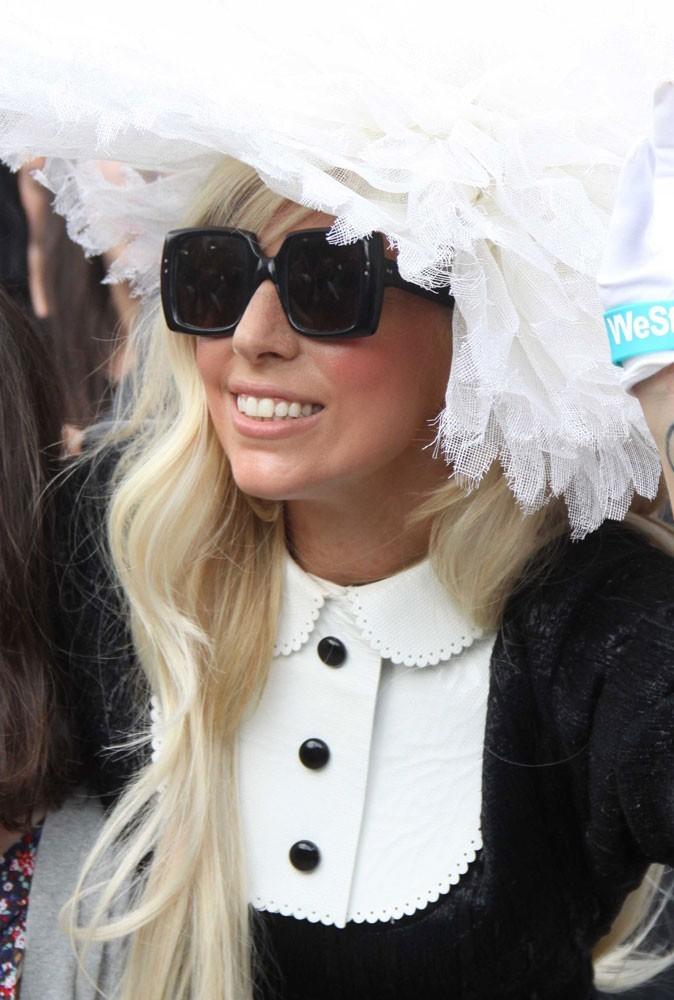 Lady Gaga strabisme