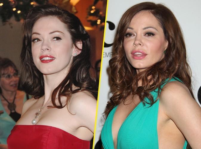 Rose McGowan : la star de Charmed ne lésine pas sur le botox