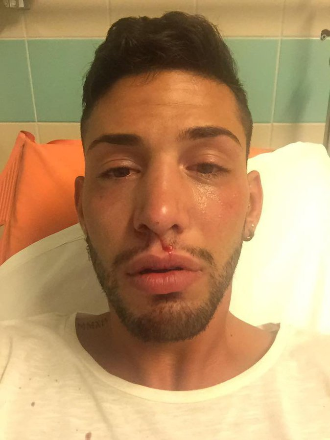 Photos : Secret Story : un candidat violemment agressé...