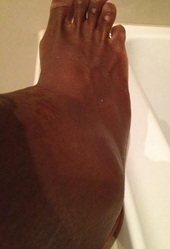 Serena Williams poste une photo de sa cheville, jeudi 24 janvier 2013