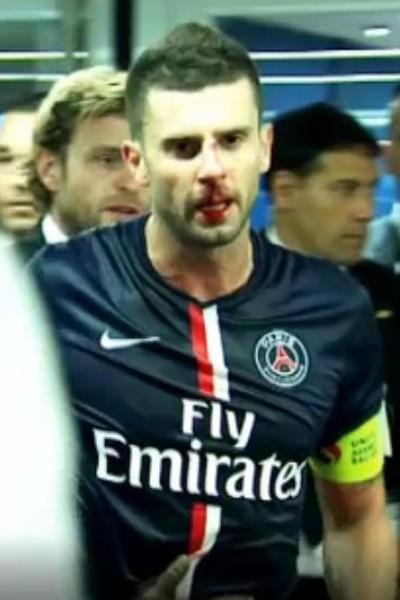 Thiago Motta le nez cassé après avoir reçu le coup de tête de Brandao