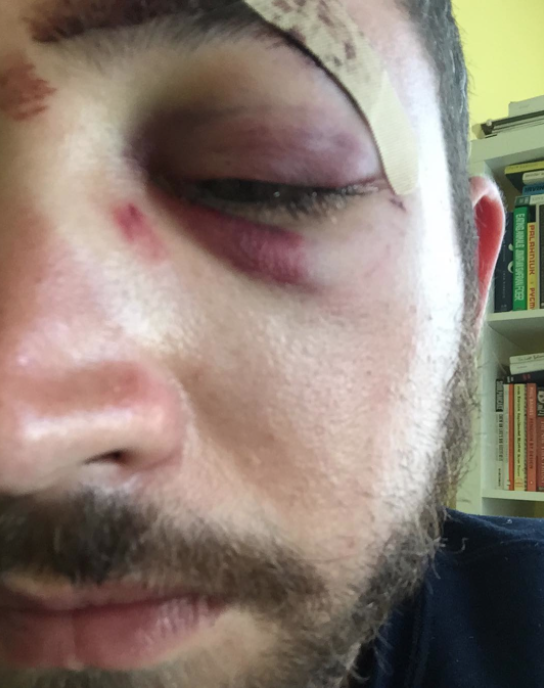 Un homme agressé à cause de sa ressemblance avec Shia LeBeouf