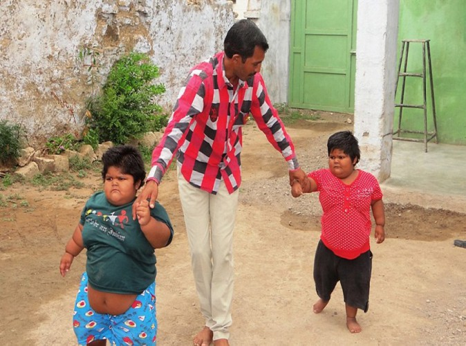 Public Buzz : Rameshbhai, le père qui était prêt à se séparer de son rein pour soigner ses enfants obèses