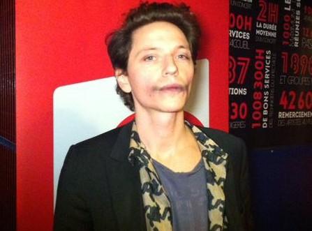 Raphael : ses bleus sur le visage aux Victoires de la Musique font le buzz sur la toile !