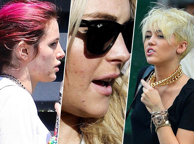 Bella Thorne, Lindsay Lohan, Miley Cyrus... ces stars qui ont de graves problèmes de peau